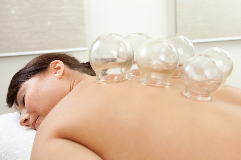 Woman with acupuncture cupping treatment on back